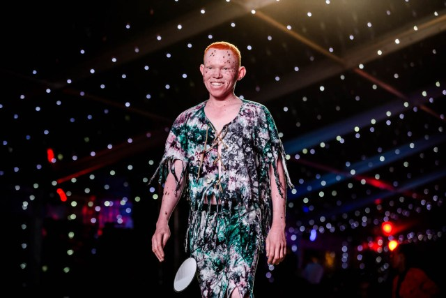 The First Ever Mr and Miss Albinism East Africa