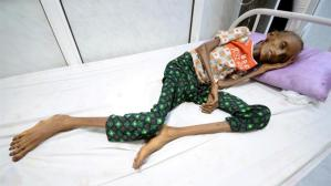 Image result for 'Millions to die' unless Saudi-led Yemen blockade ends - UN