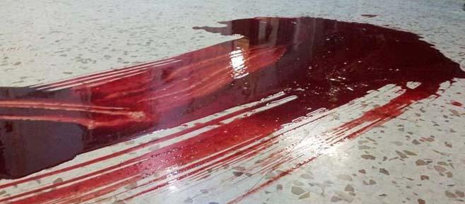حمام الدم العراقي