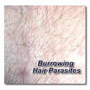 Burrowing Hair Parasites