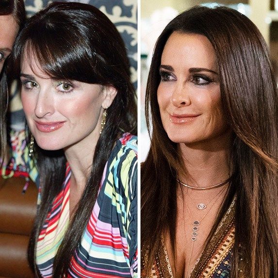 PHOTOS: Kyle Richards Denies Having A Facelift But Opens Up About What  Procedures She's Had Done! - The Real Housewives | News. Dirt. Gossip.