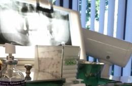 Eine Zahnarztpraxis mit einem Röntgenbild aus Symbolbild für eine Auslandskrankenversicherung.