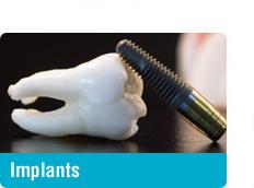 Dental Implants - Toronto Yonge Lawrence
