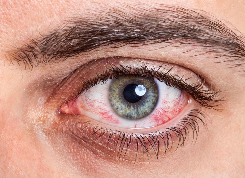 Eye Allergy Allergic Conjunctivitis  Allergies and Health