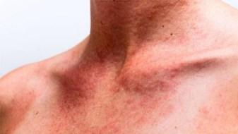dermatite-allergica