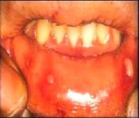 ulcere-buccali