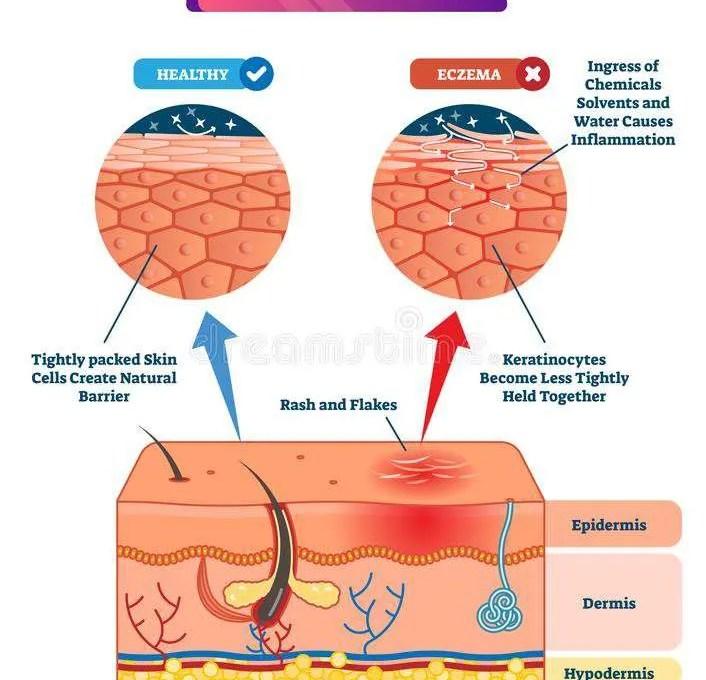 Eczema And Urticaria