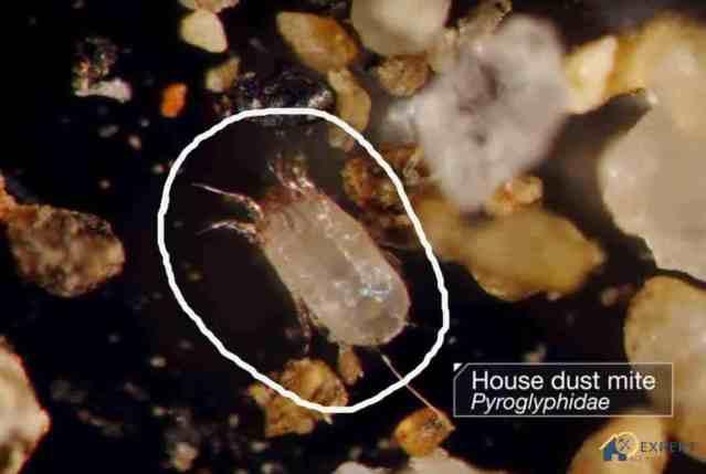 dust-mites-microscopic-image