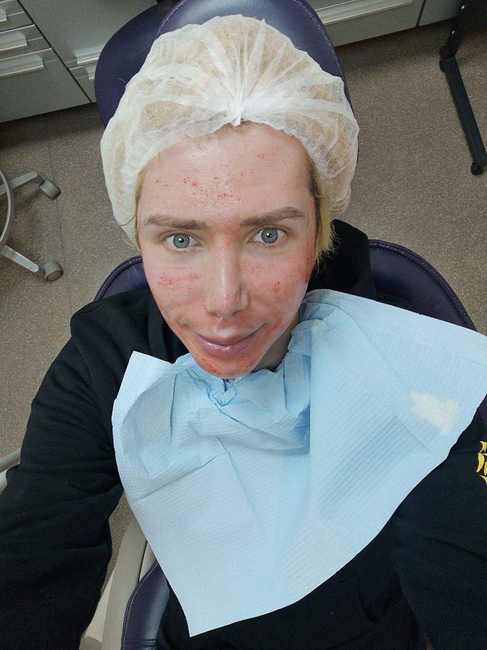 Oli London undergos Skin Whitening Injections to Match Jimins Skin   allkpop