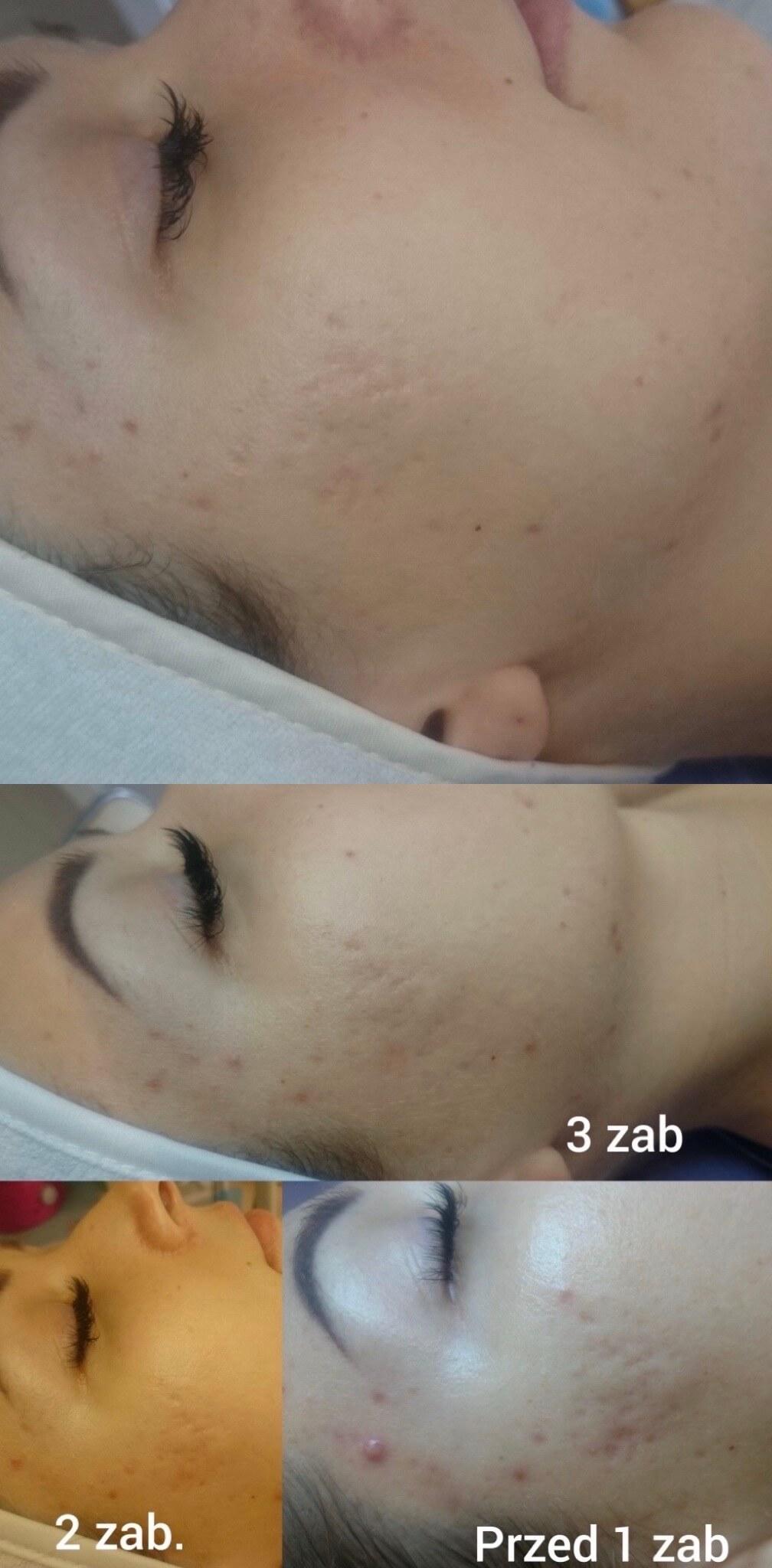 remove acne scars accutane-2