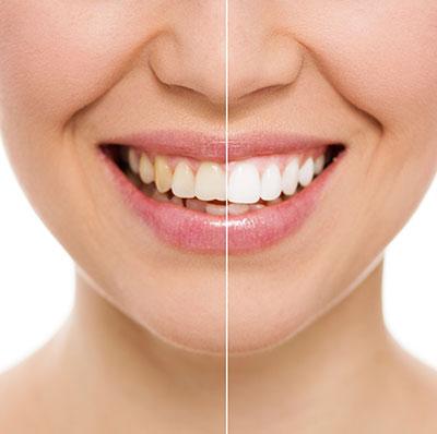 Teeth whitening training course