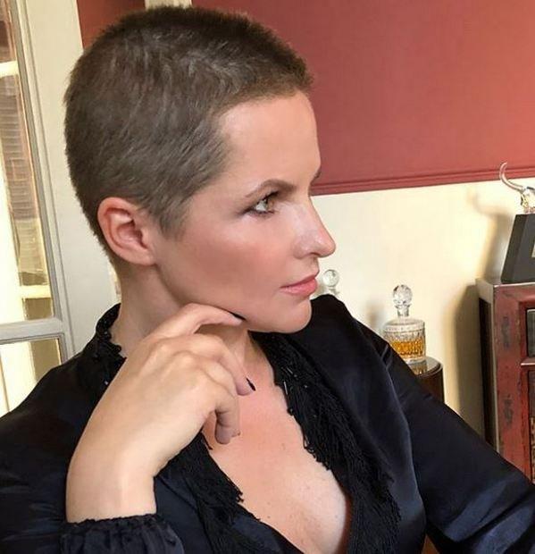 Бывшая жена Дмитрия Пескова лишилась роскошных волос, фото