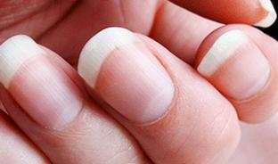 Nail Whitening Diy