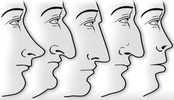 tipos de nariz significado