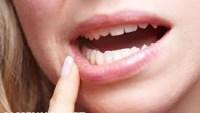 اسعار تنظيف الأسنان في السعودية 2022