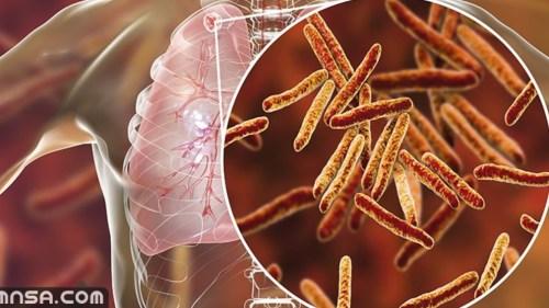 ما هو مرض السل