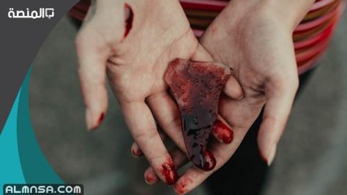 تفسير رؤية شخص مجروح في المنام