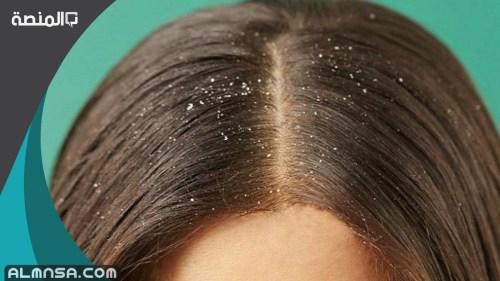 تفسير رؤية قشرة الشعر في الحلم