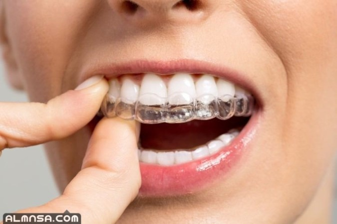 افضل دكتور اسنان في الكويت