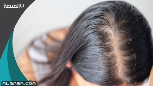 خلطة لتكثيف الشعر مضمونة 100%