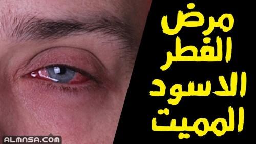 ماهو الفطر الاسود واعراضه وعلاجه