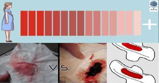 عاجل وخاص للسيدات فقط : لون دم الدورة الشهرية وقوامه وما يشير اليه من صحتك أو مرضك