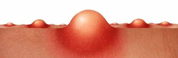اسباب ظهور الدمامل في المؤخرة المرسال