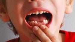 تفسير حلم سقوط الاسنان في المنام