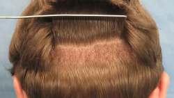 تجربتي مع زراعة الشعر في الرياض