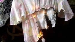 تفسير حلم حرق طرف الثوب في المنام