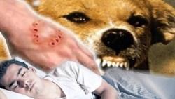 تفسير حلم عضة الكلب في المنام