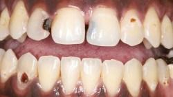تفسير حلم تسوس أسنان الميت في المنام
