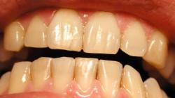 تفسير حلم رؤية أسنان الميت صفراء في المنام