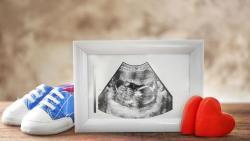 تفسير حلم الحامل بولد جميل في المنام