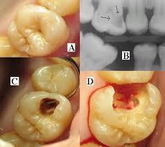 أفضل مضاد حيوي لإلتهاب عصب الأسنان