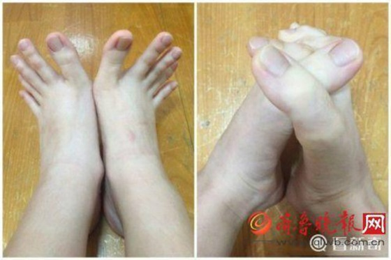 فتاة تثير ضجة على الإنترنت بسبب أصابع قدميها الطويلة1