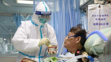 Photo of مرضى كورونا وأجهزة التنفس.. دراسة تبدد ما كان مخيفا للكثيرين