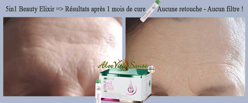 LR Lifetakt True Beauty 5in1 Beauty Elixir - Résultats sur les rides du lion après 1 mois de cure !