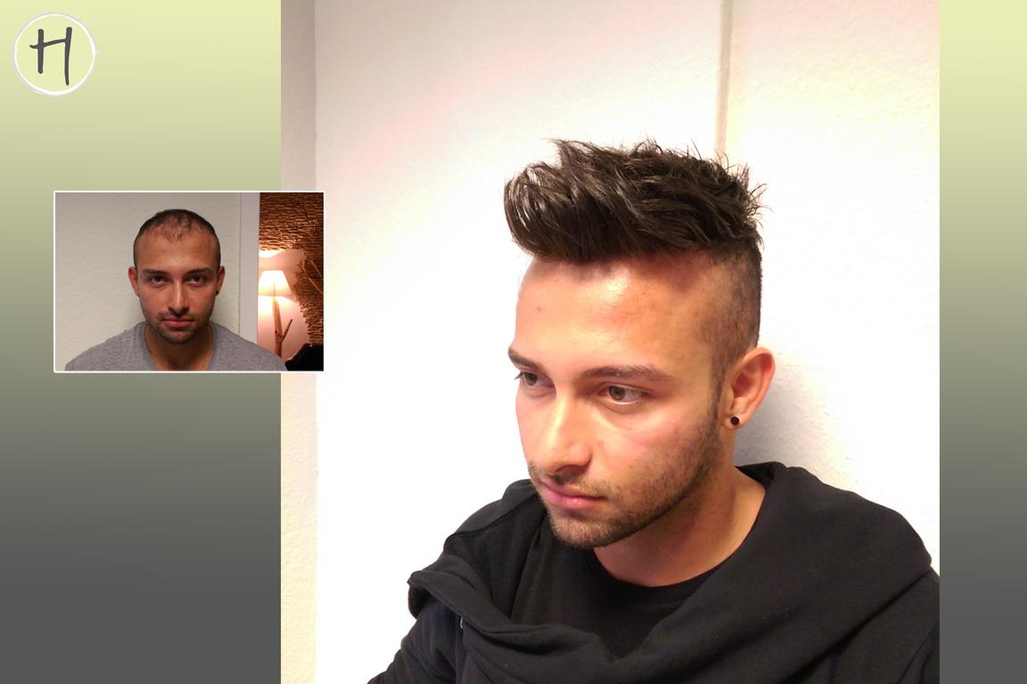 Haarausfall Allgemeines Forum Haarersatz Moderne Männer