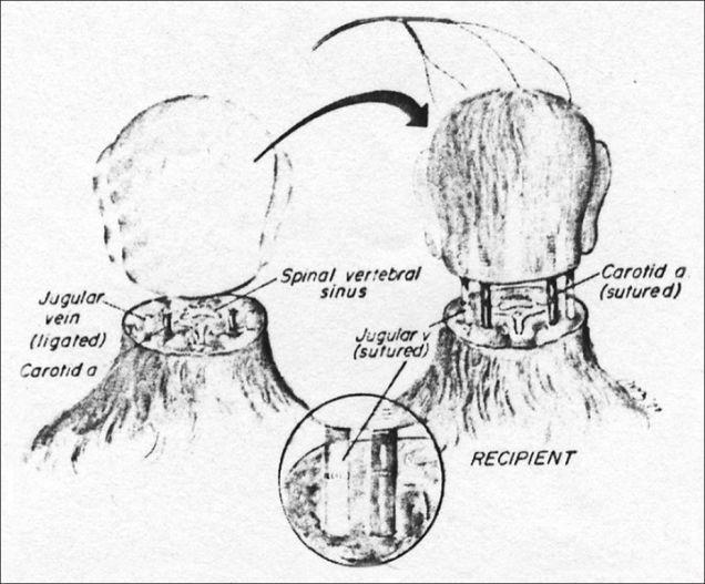 monkey_head_transplant