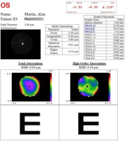 alan_laser_eye_scan_2