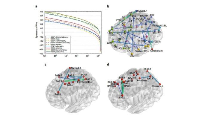 ibm_uses_ai_to_diagnose_schizophrenia