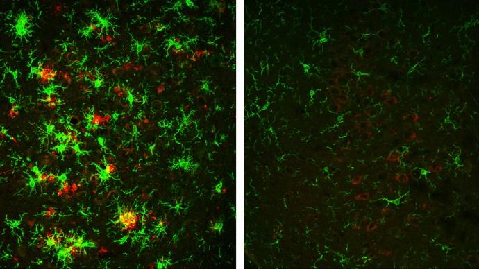 amyloid_plaques