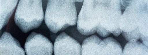 teeth_cavities_filling