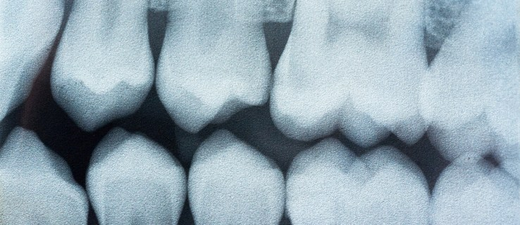 No more painful fillings! This dental breakthrough fixes cavities