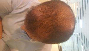 معلومات بخاخ Hair Back للذقن لتكثيف شعر الذقن