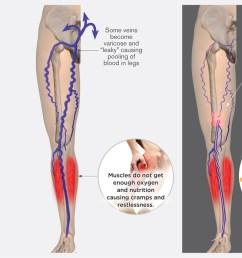 cramps restless legs however if varicose veins  [ 1200 x 696 Pixel ]
