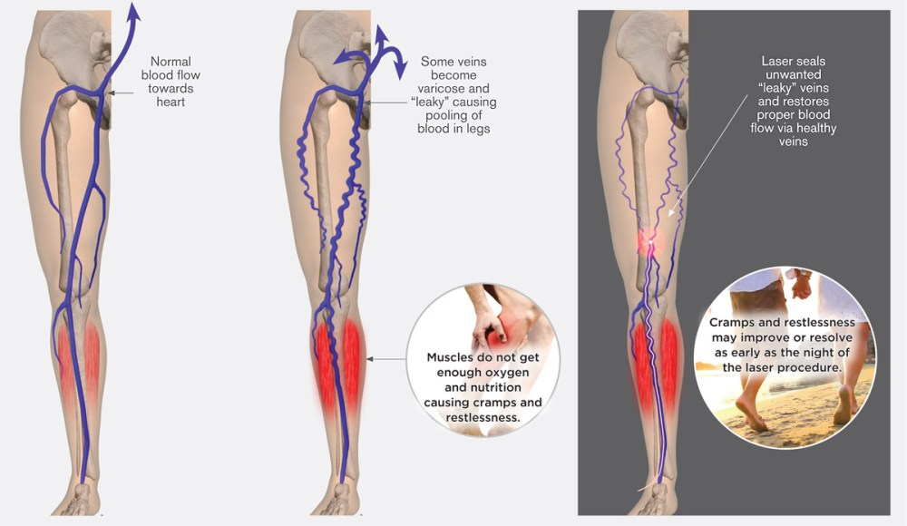 medium resolution of cramps restless legs however if varicose veins