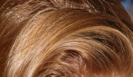 تفسير حلم رؤية قشرة الشعر في الرأس في المنام لابن سيرين