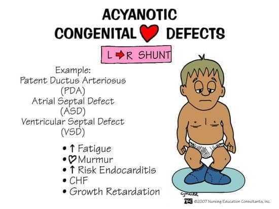 أمراض القلب الخلقية Congenital Heart Diseases